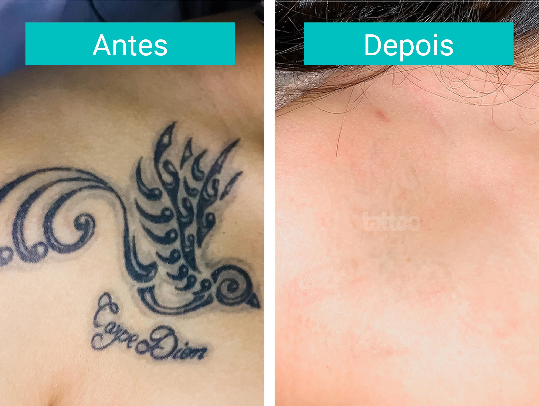 Remoção de Tatuagens - Fase Final de Tratamento